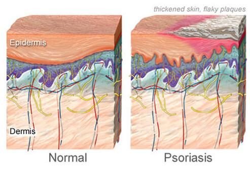 psoriasis-causes-symptoms-treatments-s5-illustration-of-psoriasis_Medicine Net website